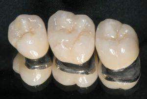 coroa-metalo-ceramica