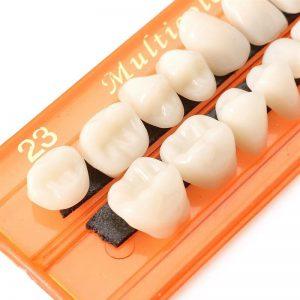 dentes-provisorios-pivo-resina