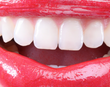 Limpeza dentária